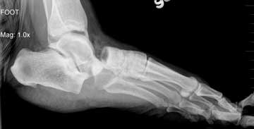 how-to-treat-broken-foot-photo – The Disabled List
