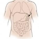 Random image: how-to-treat-torn-ruptured-spleen-photo