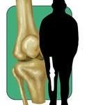 Random image: hyperextended-knee