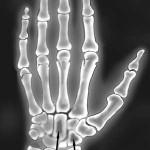 Random image: palm-bones-xray