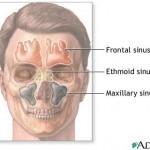 Random image: sinus