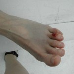 Random image: Foot Contusion from Cruise