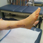 Random image: ankle-surgery-to-prevent-sprains-instability-stephen-curry-photo