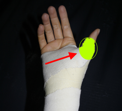 How to avoid chronic thumb injuries - Dustin Pedroia Photo
